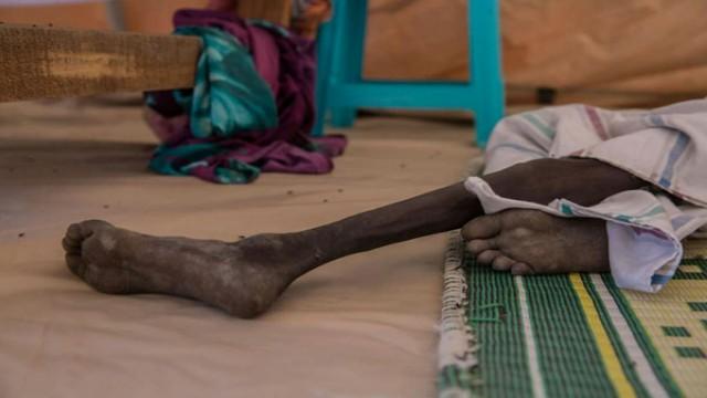South Sudan Crisis