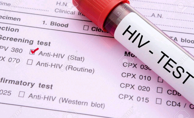 HIV test.jpg